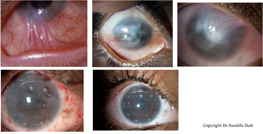 Ocular-Surface-Disorders-aanya-eye-centre