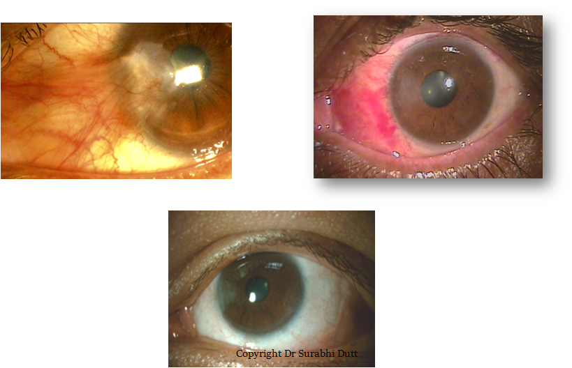 PTERYGIUM-EXCISION-aanya-centre-centre